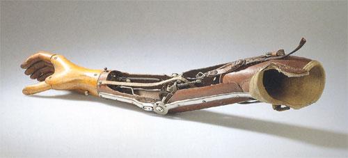 Aktive Oberarmprothese, um 1930